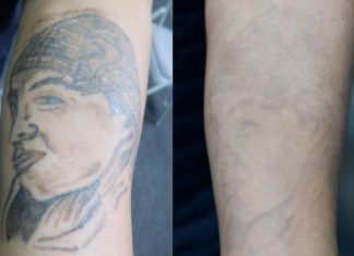 Tattoo removal in San Pablo: Leaving behind the past